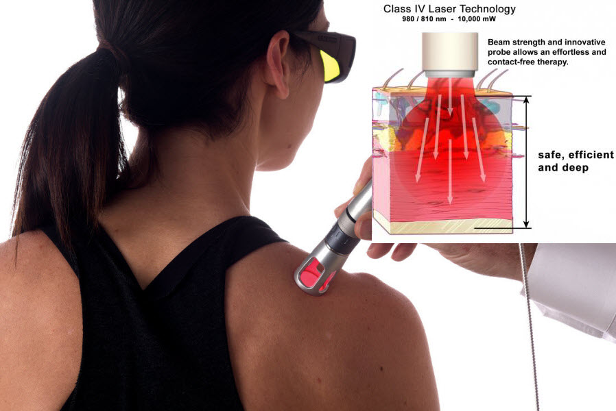 laser for neck pain therapy treatment
